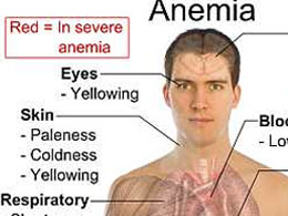 ITS A FACT People Who Are ANEMIC Have Higher Prevalence Of RLS